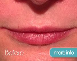 Lips_slider_before